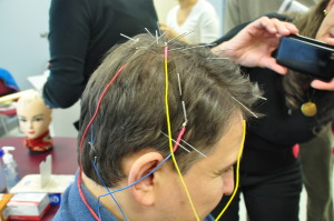Steve with electrostimulation on the scalp lines